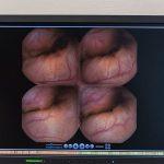 Kapselendoskopie_CAH6688_RGB