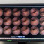 Kapselendoskopie_CAH6691_RGB